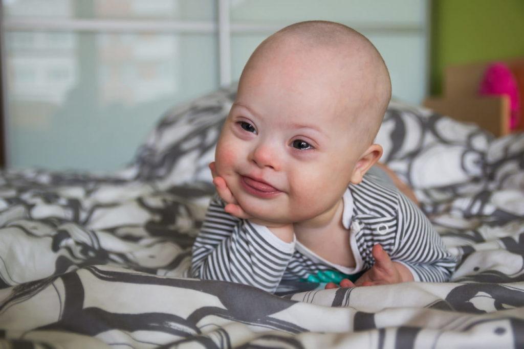 Como a Terapia Ocupacional pode ajudar crianças com Síndrome de Down?